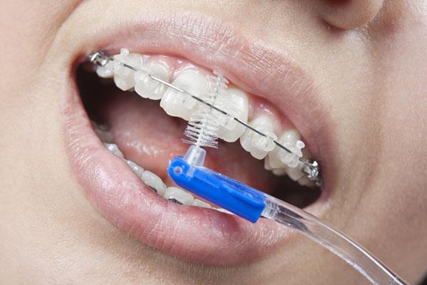 Обязательно тщательно чистить зубы